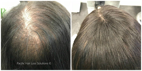 Hair extensions for trichotillomania image collections hair hair loss after extensions gallery hair extension hair female hair loss before after pacific hair extensions pmusecretfo Image collections