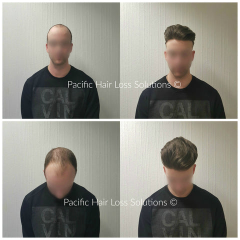 undetectable hair piece for young male vancouver