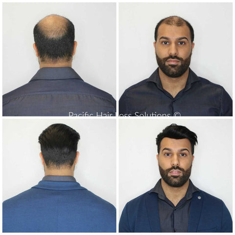 before after hairpiece for east indian man Pacific Hair Vancouver