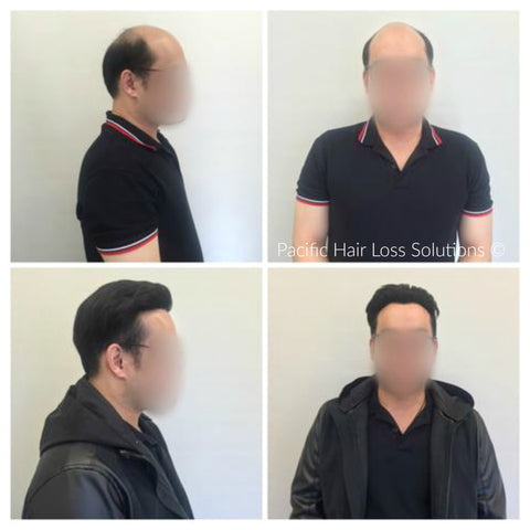 men's slicked back under cut with hair piece Vancouver