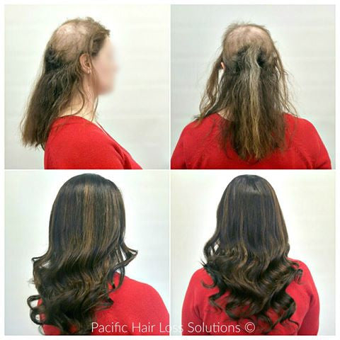 human hair wig for trichotillomania hair loss Vancouver