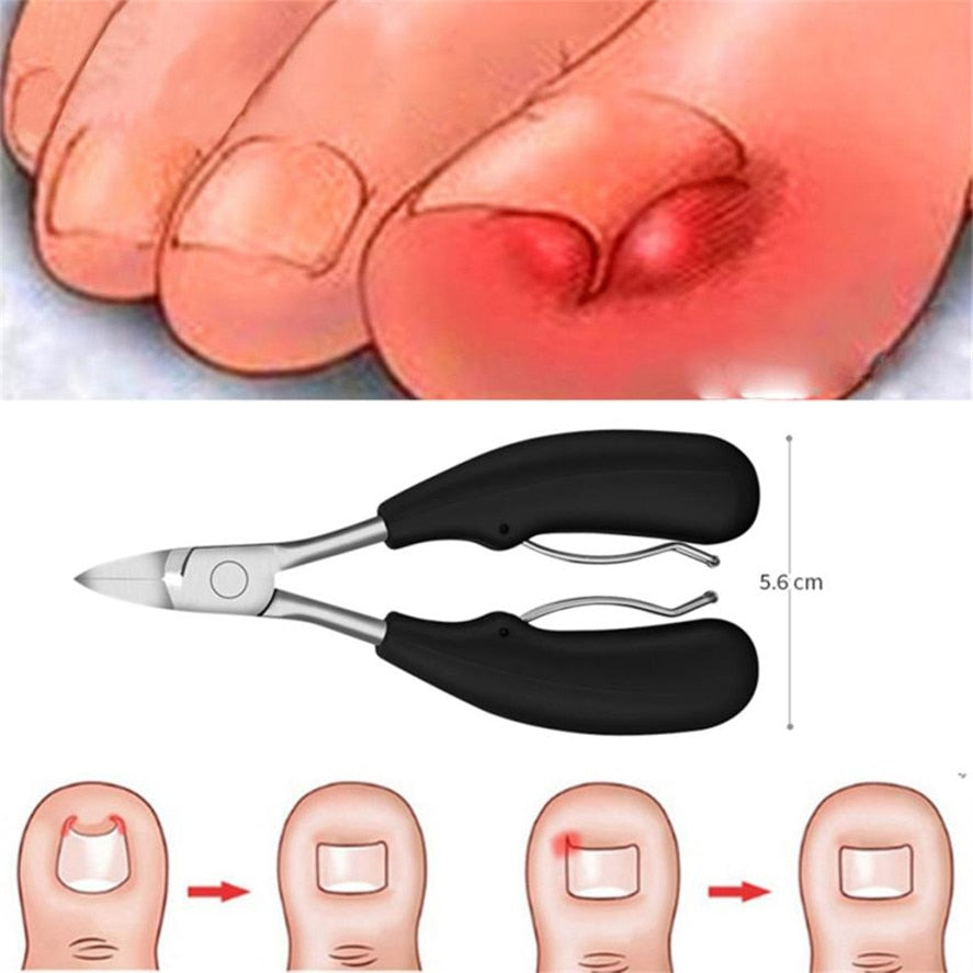 PRECISION TOENAIL CLIPPERS + FREE SHIPPING - Market Glad ™