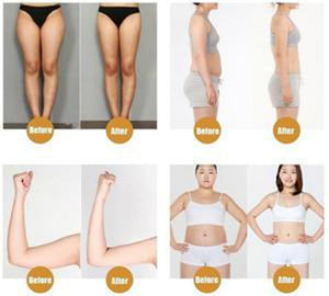 CELLULITE REMOVAL CREAM + Free Shipping - Market Glad ™