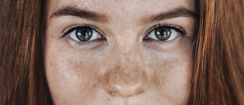 HOW TO DITCH DARK SPOTS