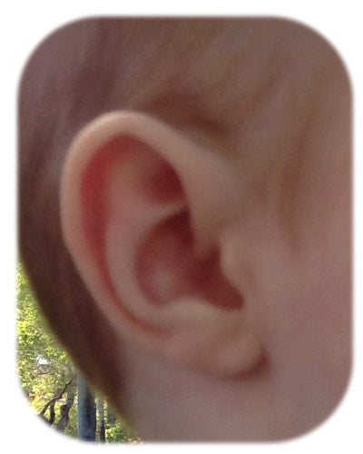 Ear Buddies has removed the rim kink deformity, leaving a normal ear