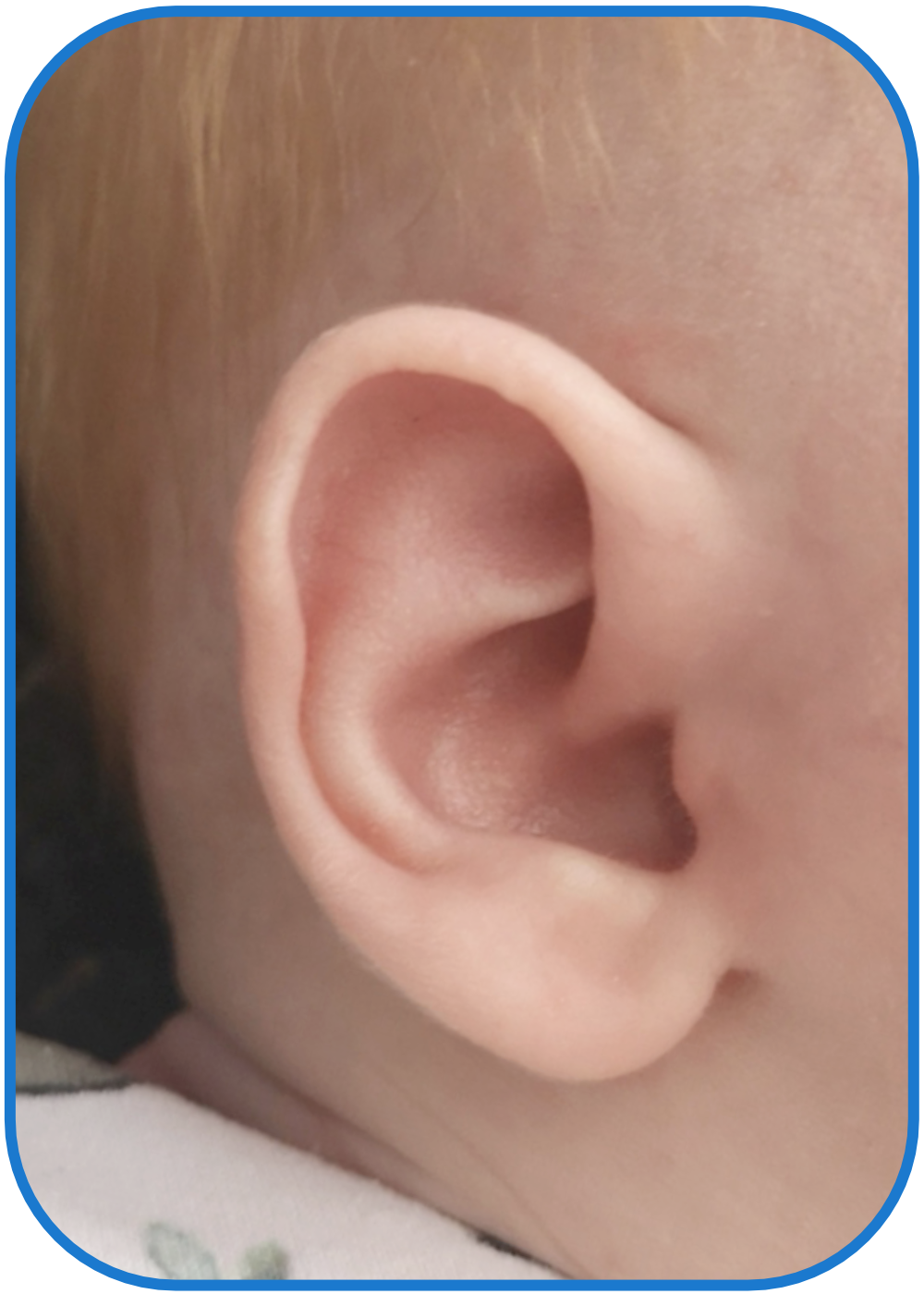 Folded Over Ears can be Fixed without Surgery