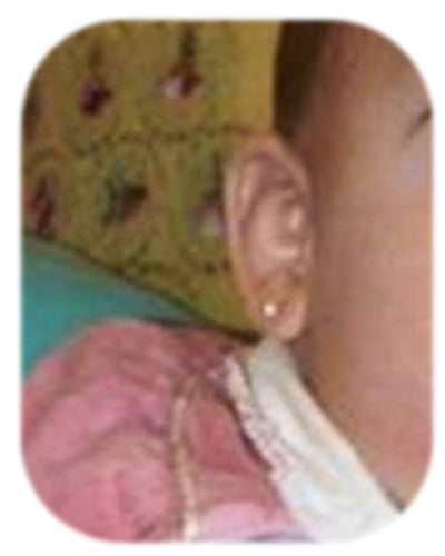 using ear correctors to fix baby stick out ears without bonnet or hat