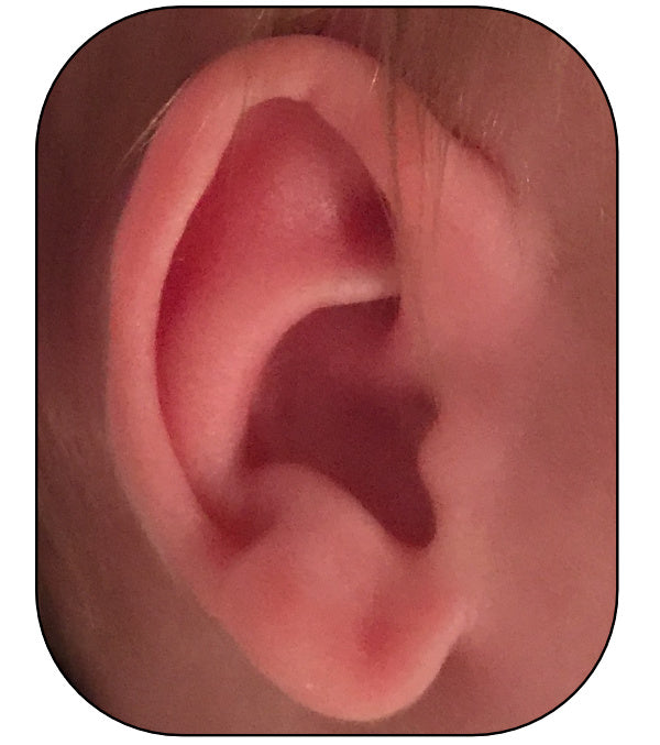 correction of kinked ears with ear buddies | parent review