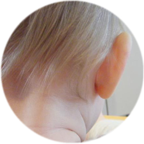 10 months after using ear buddies shapers to mold ear cartilage | stick out ears fixed