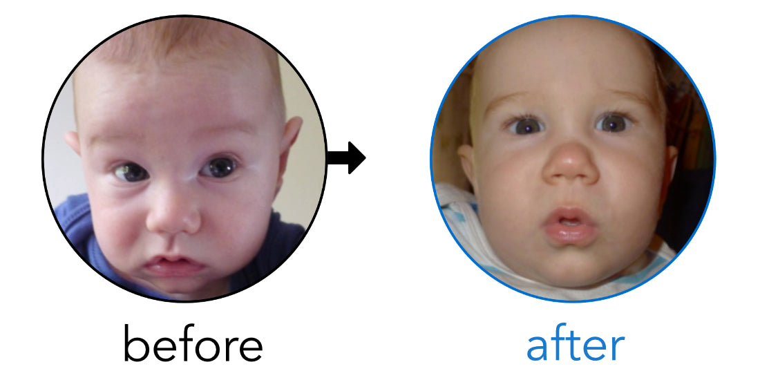 before after stick out ears baby fix