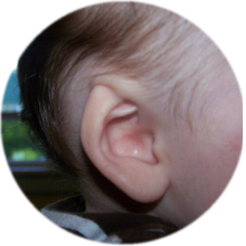 ear buddies fixes cryptotia in babies