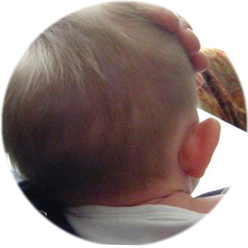 before earbuddies | baby head seen from behind at 7 weeks old