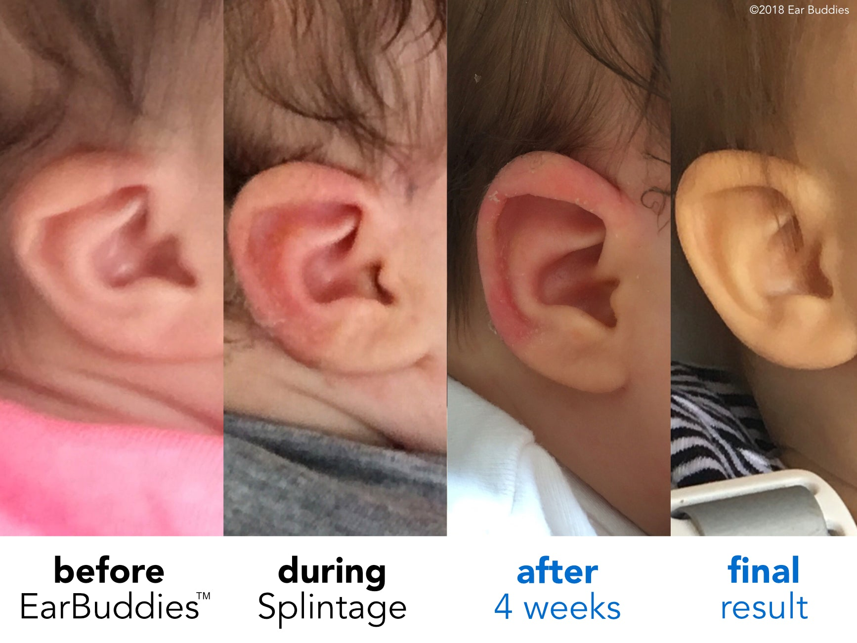 folded ear problem in baby ear