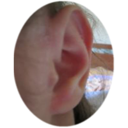 child's ear with a reformed scaphal hollow after using ear buddies to correct sticky out ears