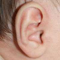 picture of a baby's ear with conchal crus or telephone ear