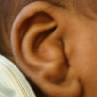 Conchal crus in a baby's ear