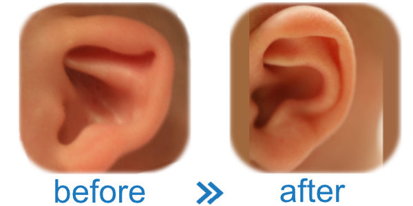 Picture of a Cup Ear | Worried Baby's ears are cupped and want to fix them? | See before and after results here!