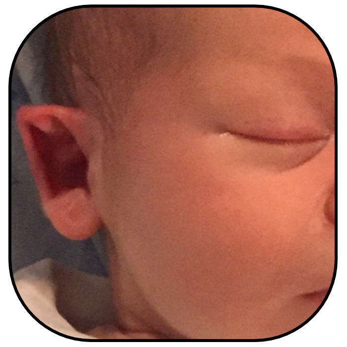 newborn baby with pointy out ears