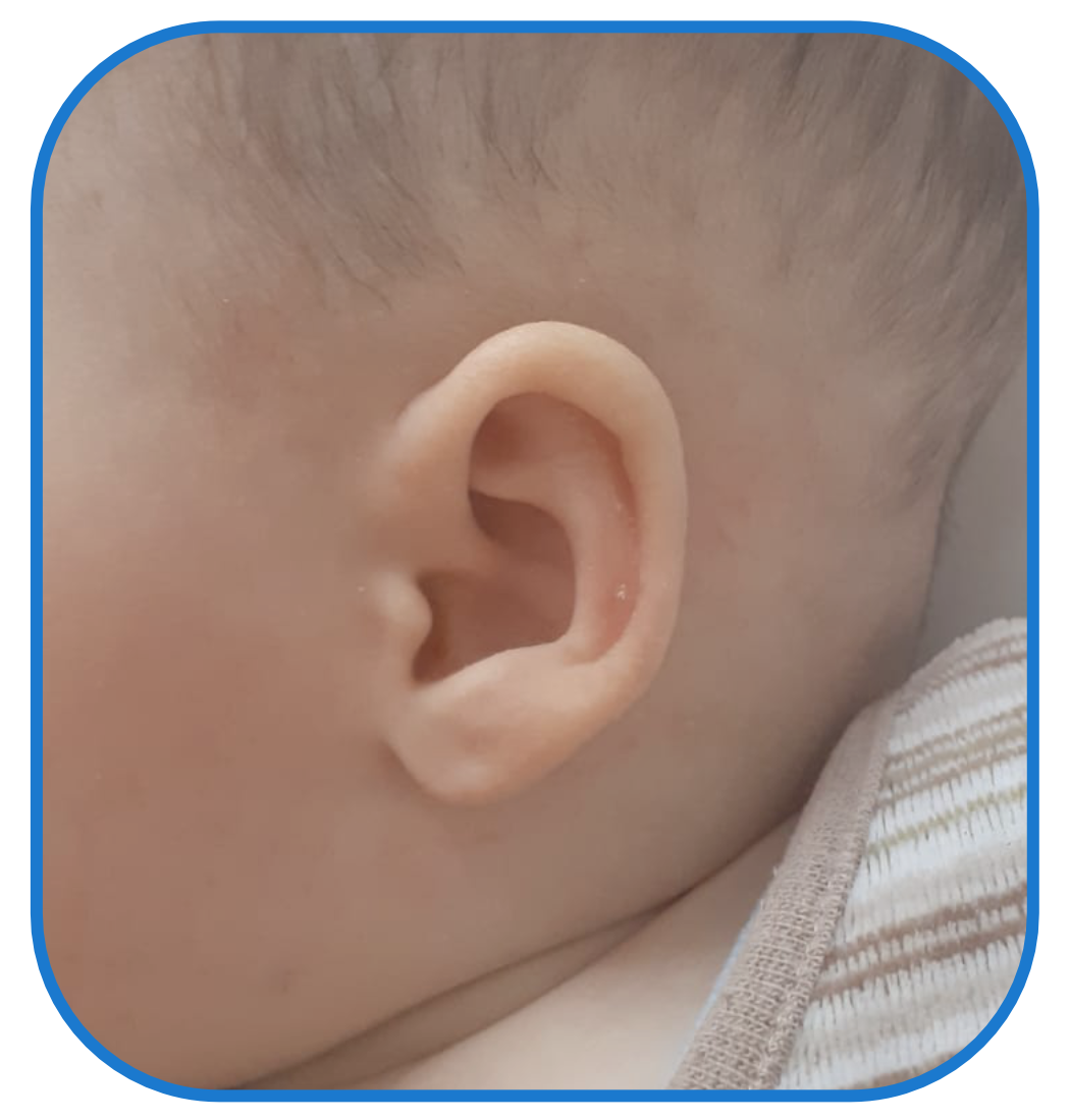 Baby Ear Lobe Sticks Out - Review of EarBuddies