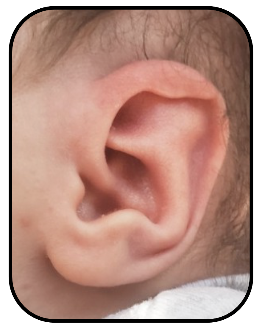 babys ear before ear buddies