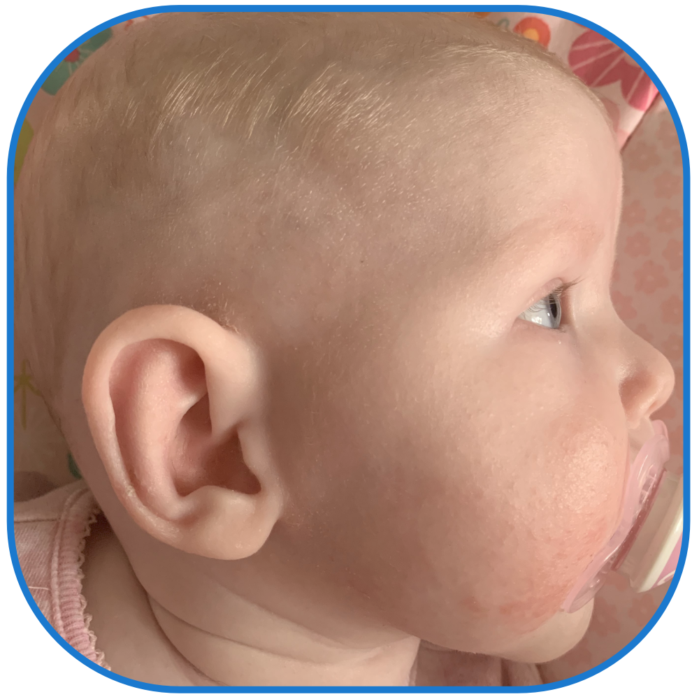 Baby ear review ear buddies