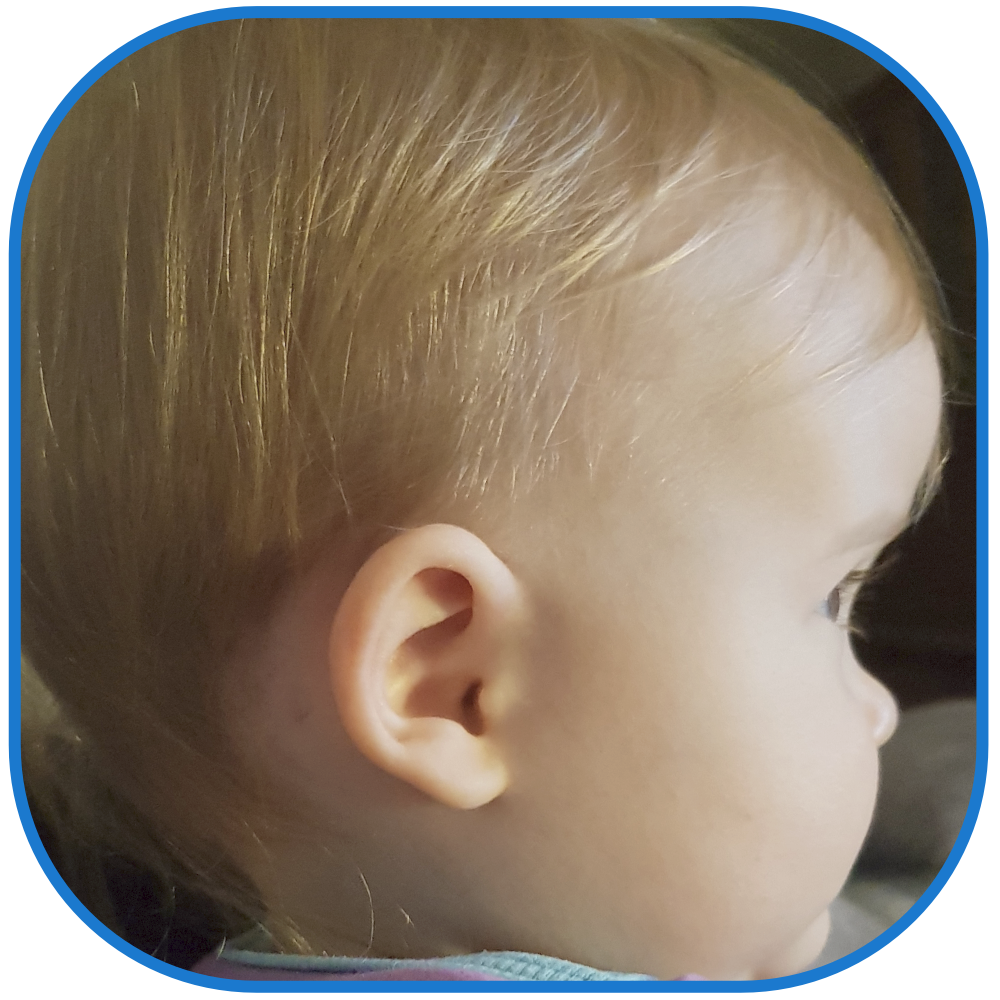 Baby with ear buddies used