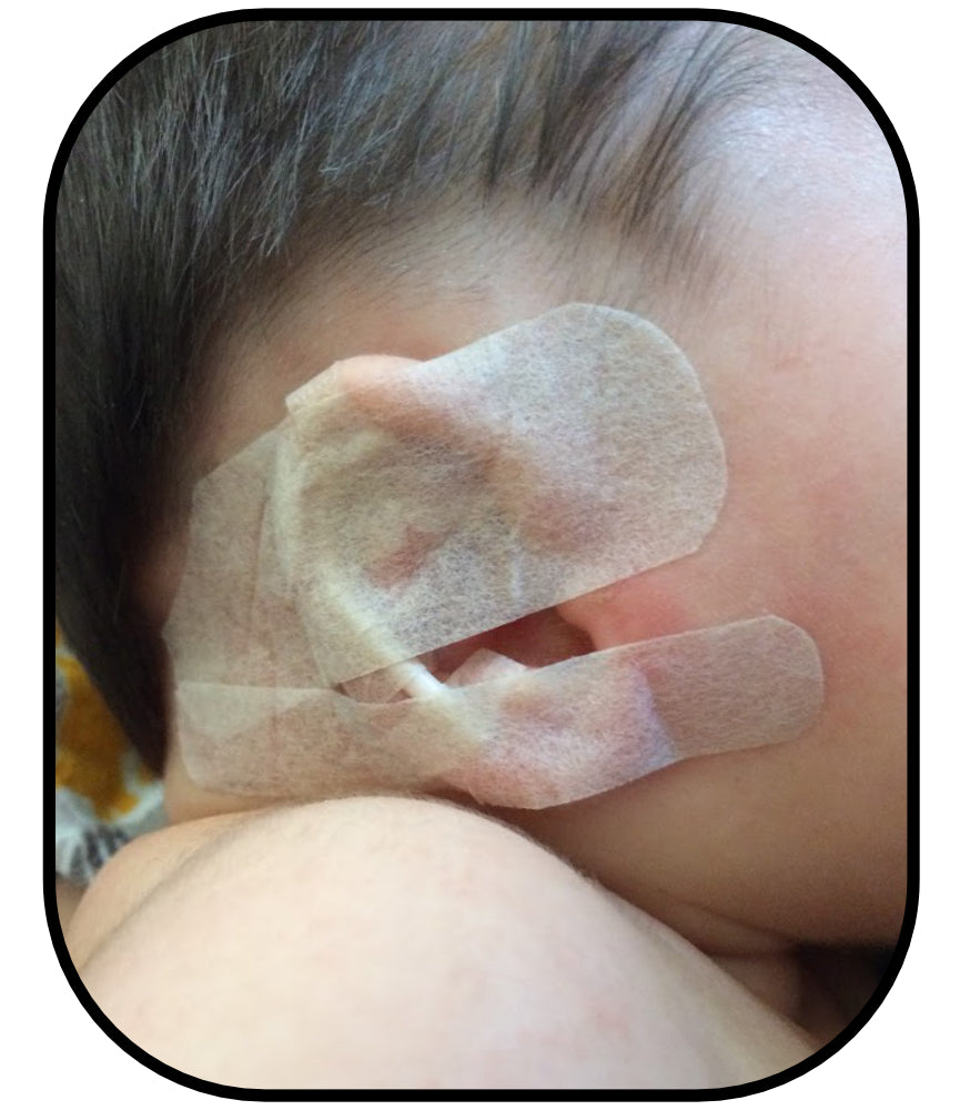 baby ear lobe deformity fix
