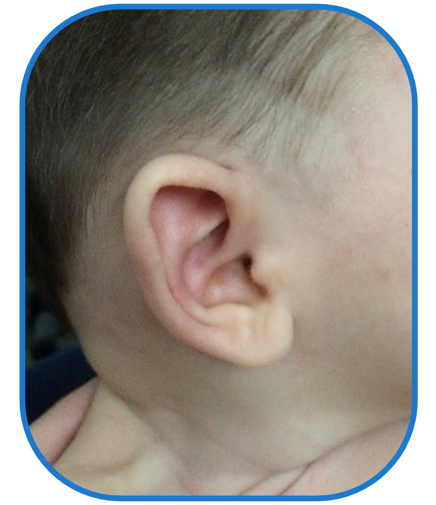 baby's ear lobe fix