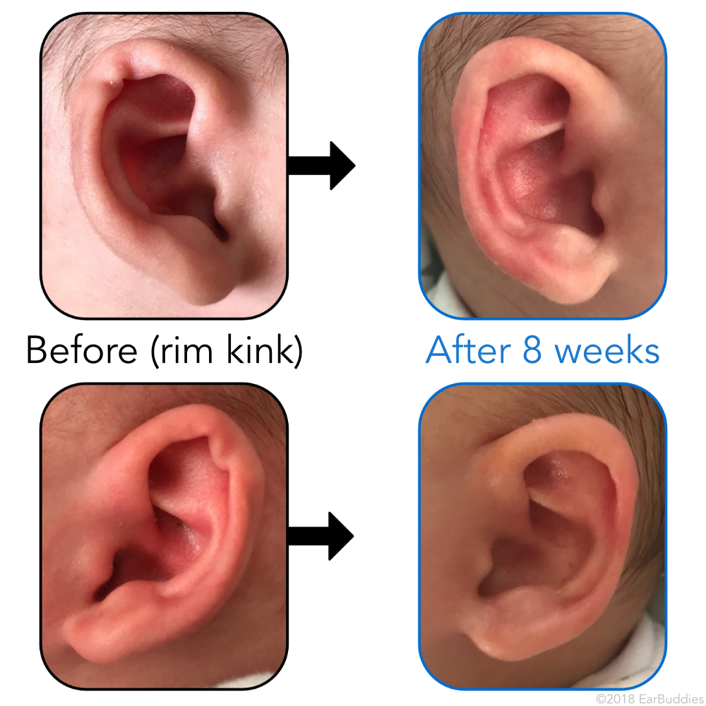 Cork in the ear, what to do