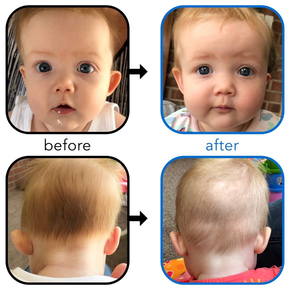 Babys Ears starting to Stick Out or Fold Over? | EarBuddies™