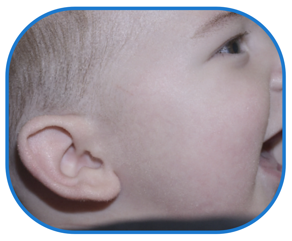 Baby photo after ear buddies - results