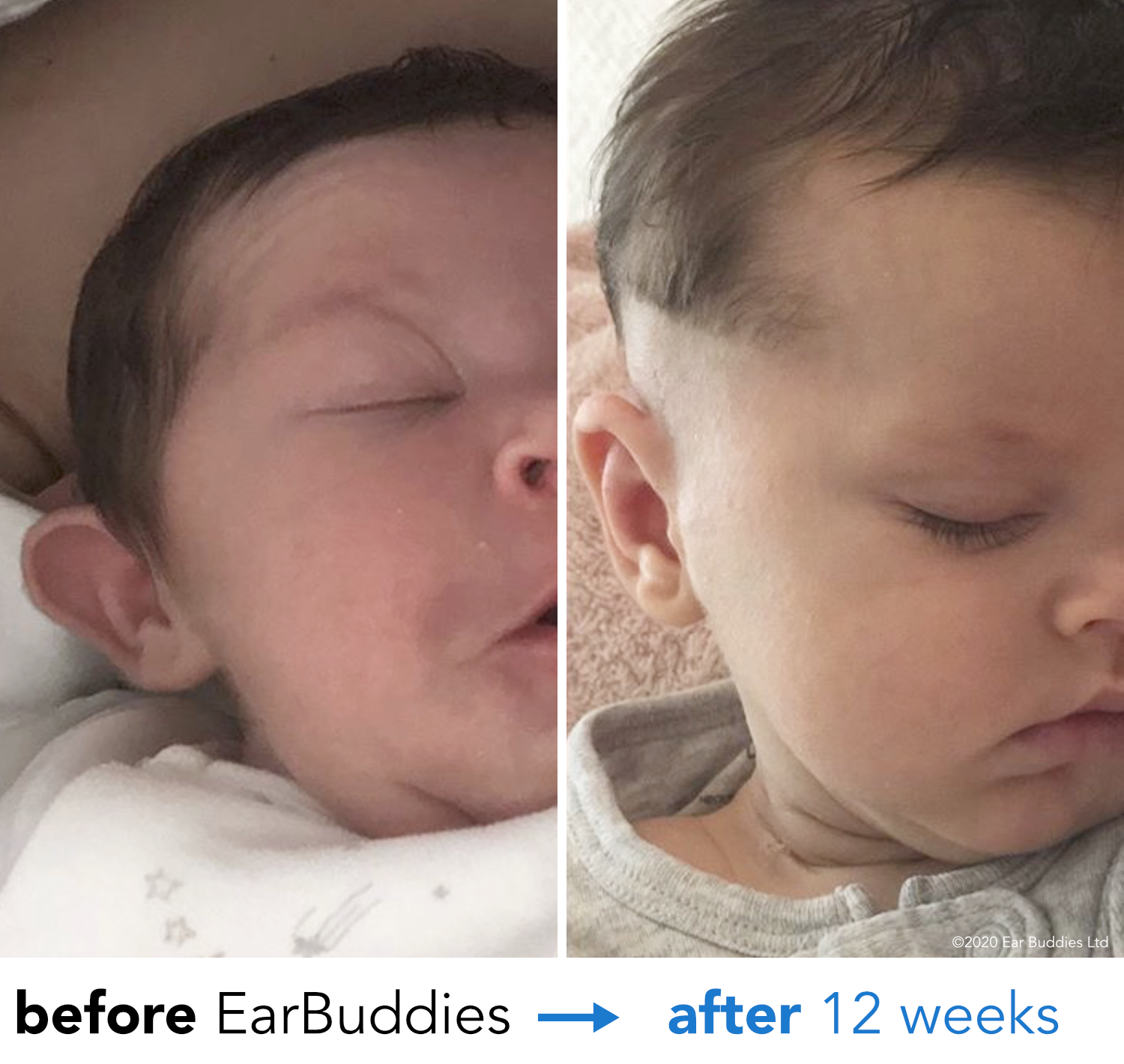 Baby Ears Stick Out Review of EarBuddies