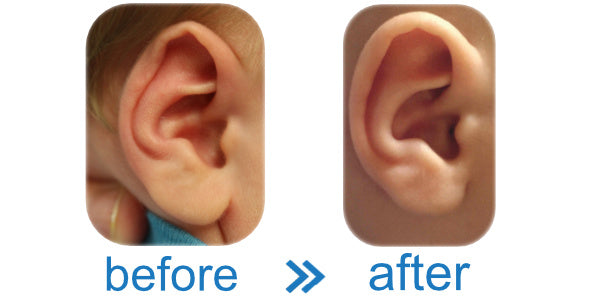 Fold Over Rim | Ear Cartilage Moulded and Hardened in the correct shape