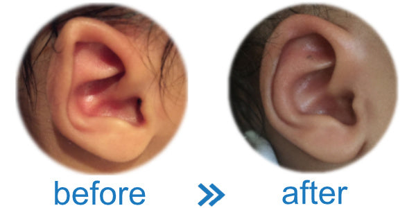 Folded-Over Helical Rim in Baby corrected with EarBuddies