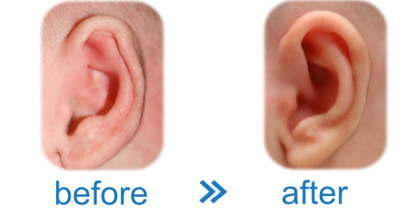 Picture of a Baby's Ear with a Folded Over Rim fixed with an ear corrector device