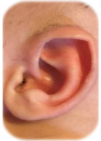 earbuddy corrects newborn baby stahl's or pointed or elf ear