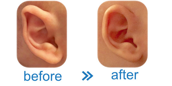 Fold Over Baby Ear fixed with Ear Buddies | Evidence that they work & Reviews