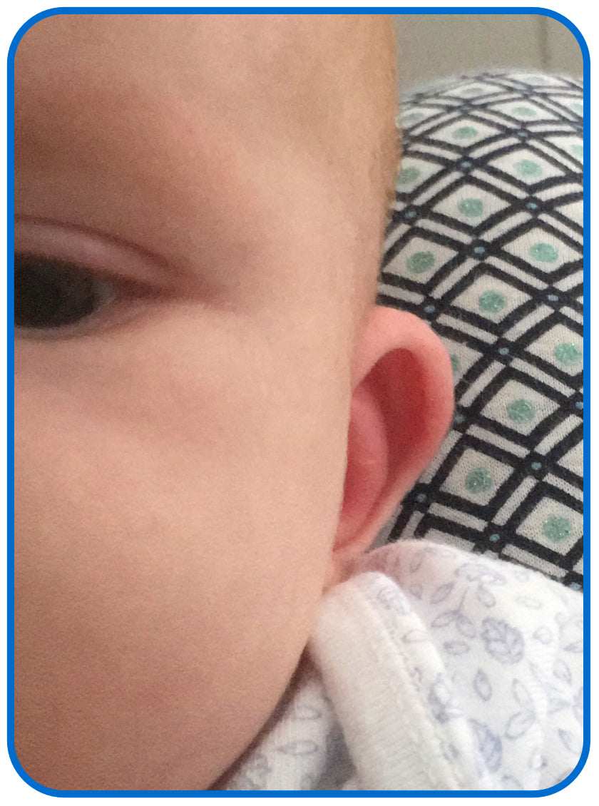babies ear after ear buddies
