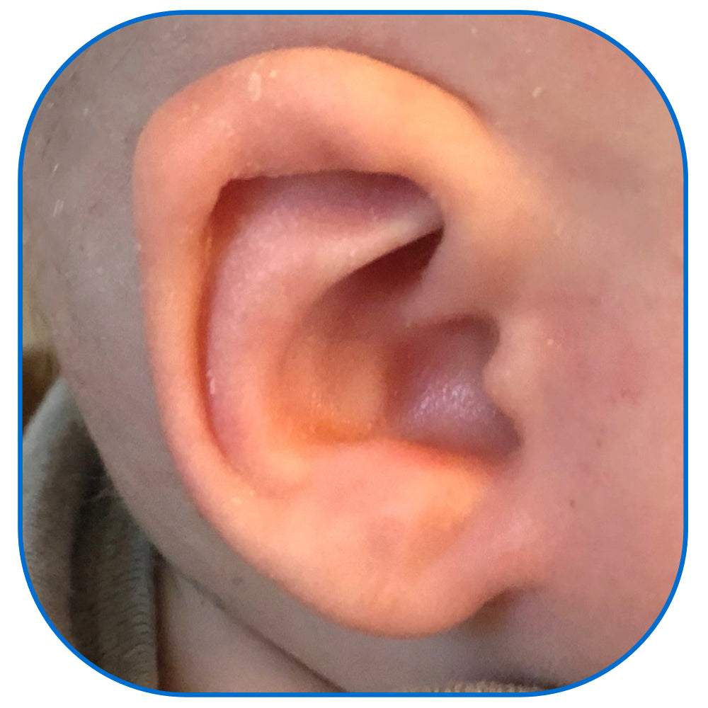 ear buddies parent conceal crus fitting