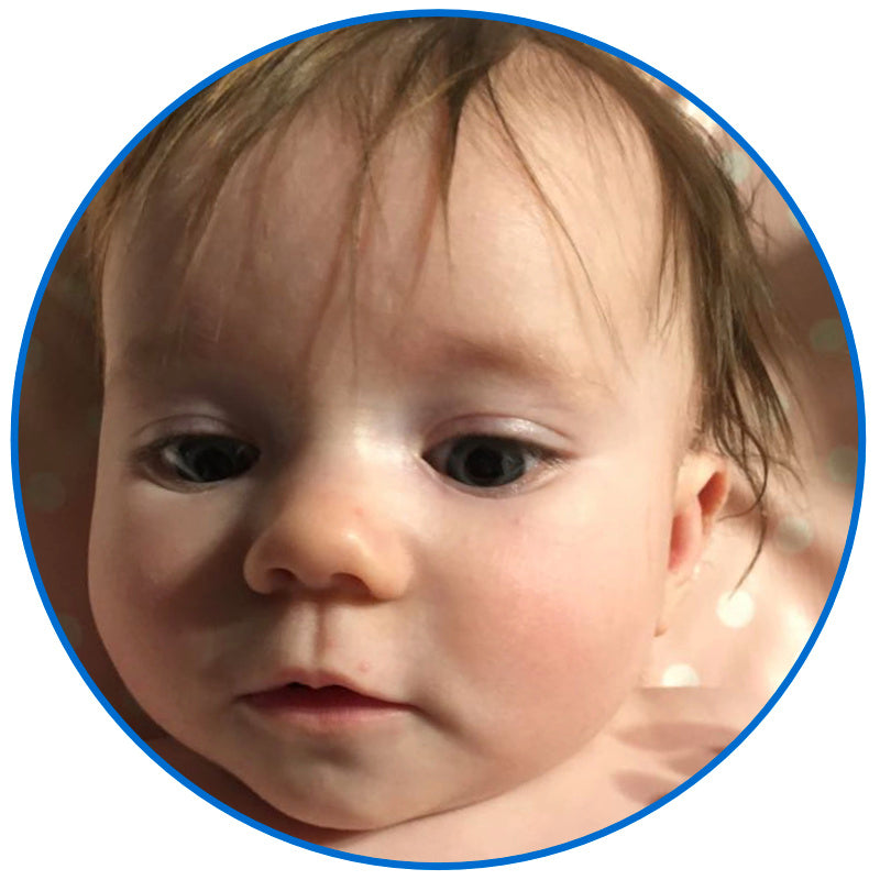 corrected stick out baby ear buddies parent review uk