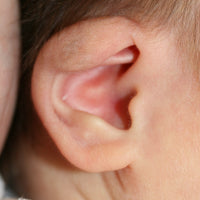 The upper part of baby's ear folded over