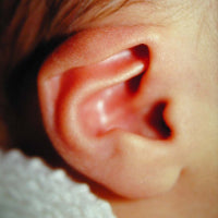 A picture of a baby's ear with lop ear deformity