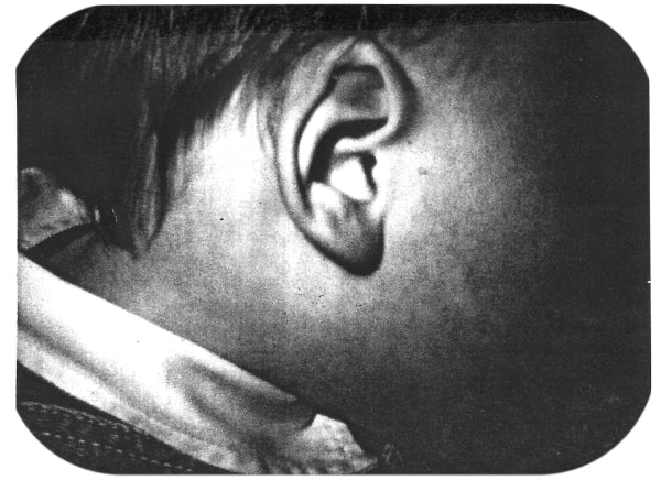 crumpled baby ear fixed with medical device for molding ears