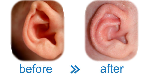Baby born with kink in ear ? EarBuddies™ is an easy, cheap & effective solution.