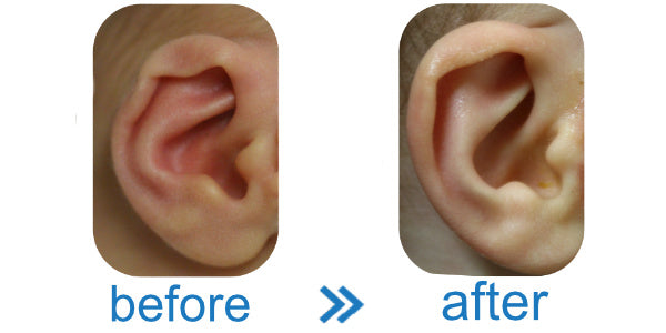 Photo with Results showing that EarBuddies™ work on Folded Baby Ears