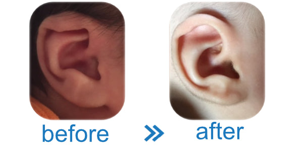 Lop ear folded over fix without surgery