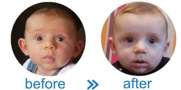 Avoid Surgery with EarBuddies Splints like this Cute Baby Boy!
