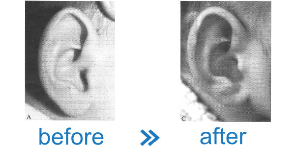 ear pointed at the top   baby ear folds forward   before and after results