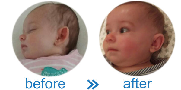 Baby got stick out ears | avoid surgery with ear reshapers | EarBuddies™