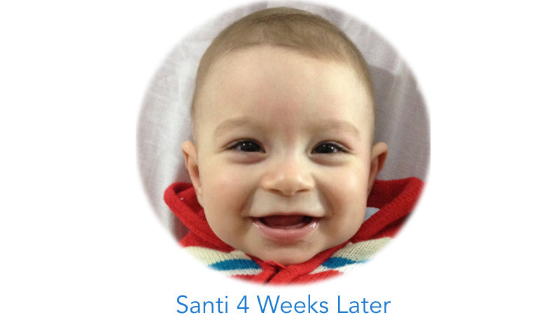 Baby after using EarBuddies™ | Sticky Out Ears Gone | Smiling Baby